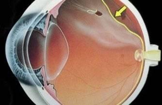 Agujero en la retina superior con separación entre la retina y la pared del ojo: desprendimiento de retina