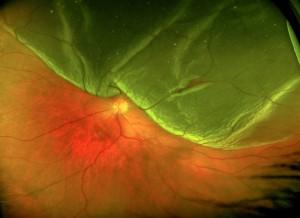Fotografia mostrando un desprendimiento de la retina superior. Ha cambiado de color y se aprecia una rotura lineal mas roja