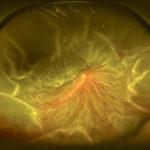 Fotografía de fondo de ojo mostrando desprendimiento de retina total